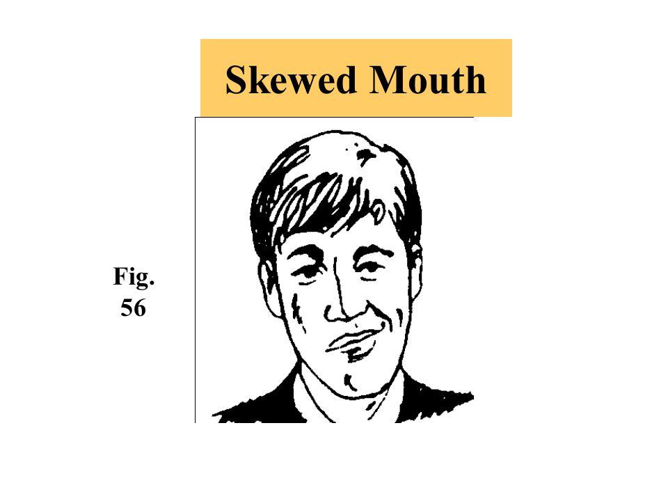 Skewed Mouth Fig. 56