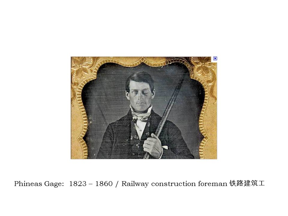 Phineas Gage: 1823 – 1860 / Railway construction foreman 铁路建筑工