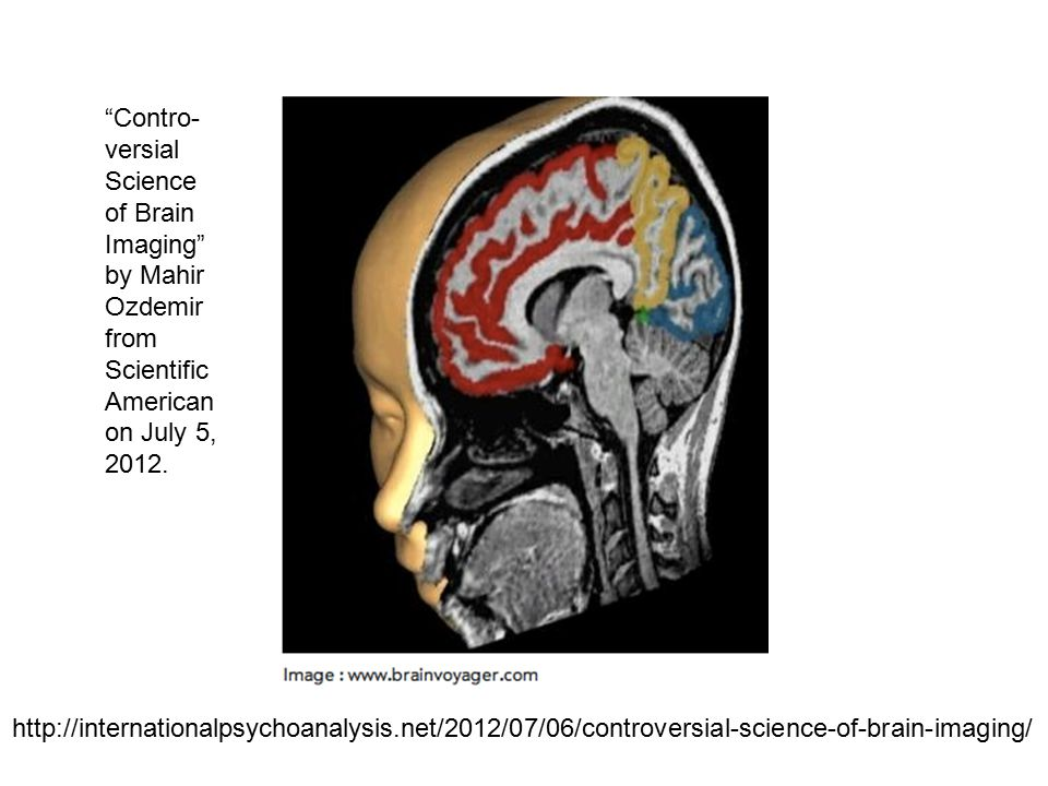 Contro- versial Science of Brain Imaging by Mahir Ozdemir from Scientific American on July 5, 2012.