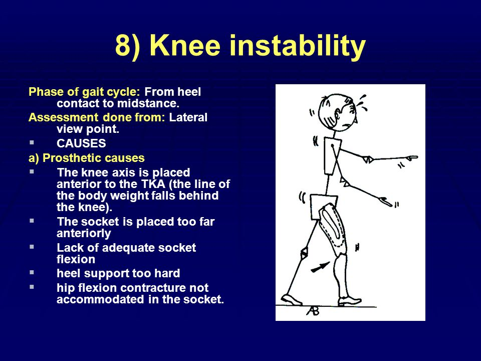 8) Knee instability Phase of gait cycle: From heel contact to midstance.