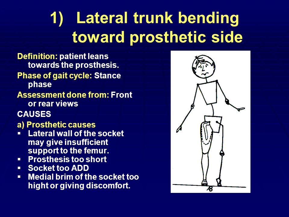 1) 1)Lateral trunk bending toward prosthetic side Definition: patient leans towards the prosthesis.