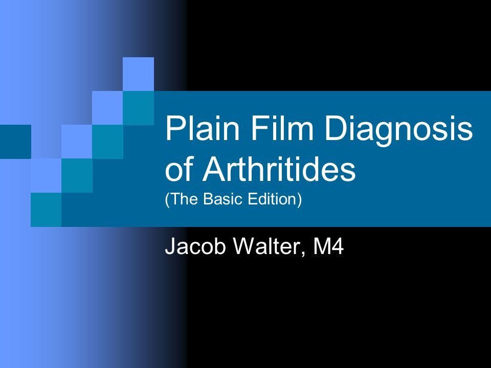 Plain Film Diagnosis of Arthritides (The Basic Edition) Jacob Walter, M4
