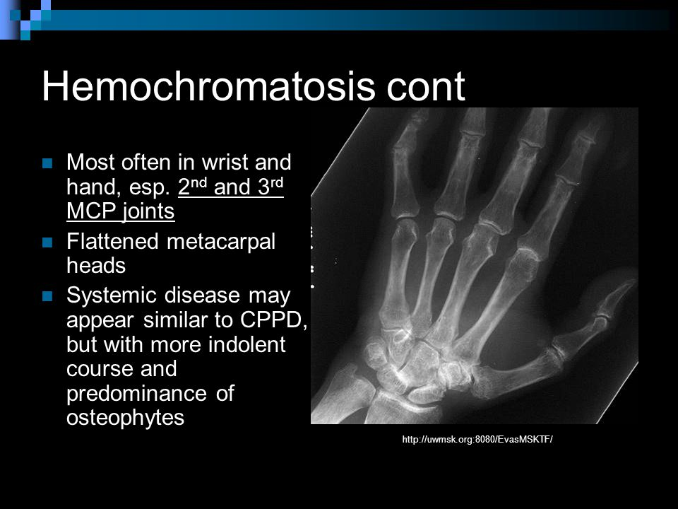 Hemochromatosis cont Most often in wrist and hand, esp.