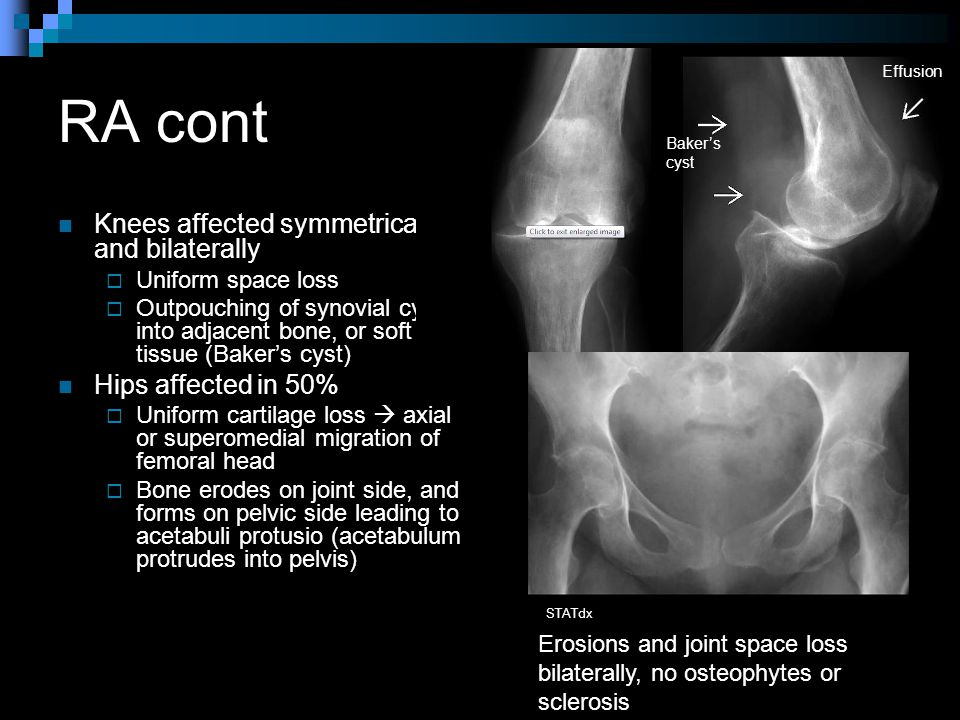 RA cont Knees affected symmetrically and bilaterally  Uniform space loss  Outpouching of synovial cysts into adjacent bone, or soft tissue (Baker's