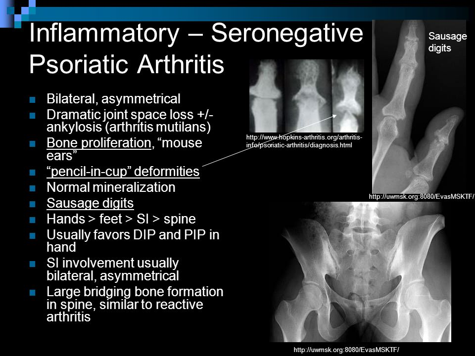 Inflammatory – Seronegative Psoriatic Arthritis Bilateral, asymmetrical Dramatic joint space loss +/- ankylosis (arthritis mutilans) Bone proliferation, mouse ears pencil-in-cup deformities Normal mineralization Sausage digits Hands > feet > SI > spine Usually favors DIP and PIP in hand SI involvement usually bilateral, asymmetrical Large bridging bone formation in spine, similar to reactive arthritis http://uwmsk.org:8080/EvasMSKTF/ Sausage digits http://uwmsk.org:8080/EvasMSKTF/ http://www.hopkins-arthritis.org/arthritis- info/psoriatic-arthritis/diagnosis.html