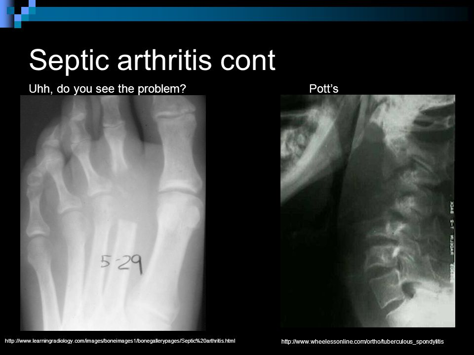 Septic arthritis cont Uhh, do you see the problem.