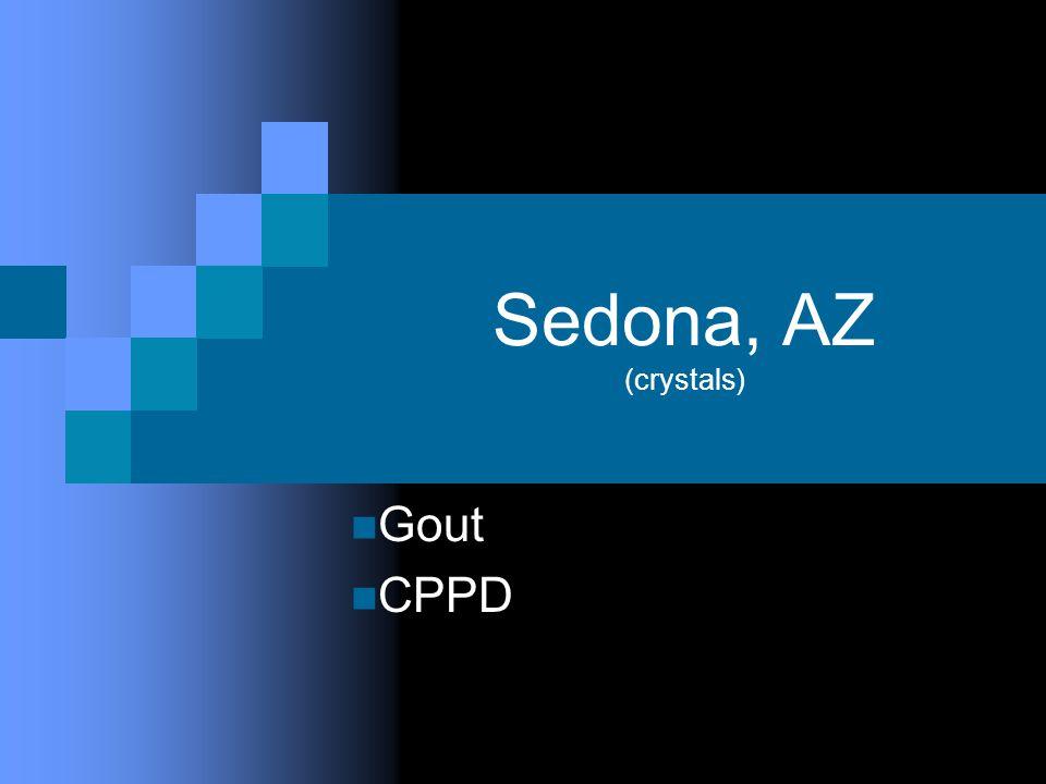 Sedona, AZ (crystals) Gout CPPD
