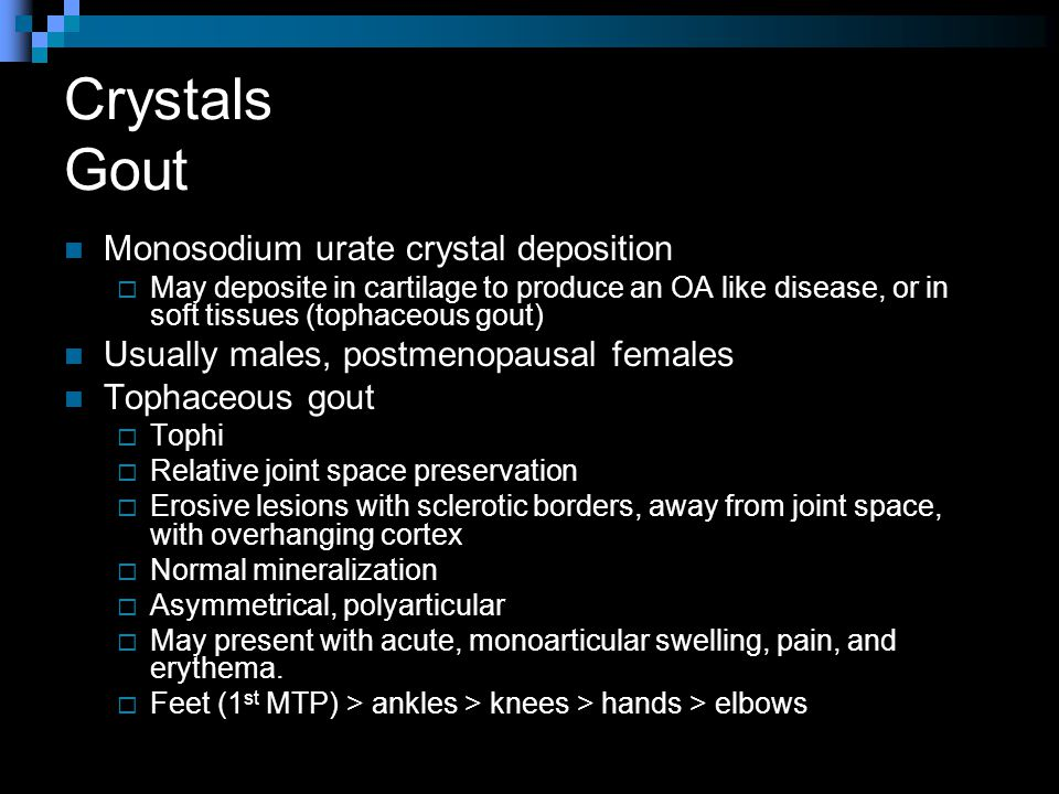 Crystals Gout Monosodium urate crystal deposition  May deposite in cartilage to produce an OA like disease, or in soft tissues (tophaceous gout) Usually males, postmenopausal females Tophaceous gout  Tophi  Relative joint space preservation  Erosive lesions with sclerotic borders, away from joint space, with overhanging cortex  Normal mineralization  Asymmetrical, polyarticular  May present with acute, monoarticular swelling, pain, and erythema.