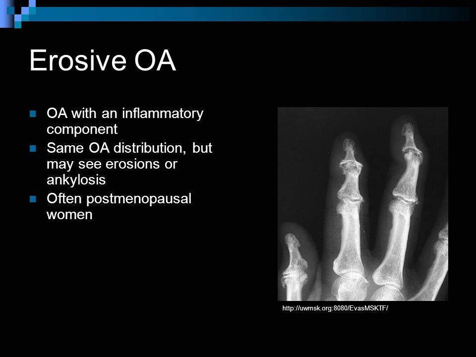 Erosive OA OA with an inflammatory component Same OA distribution, but may see erosions or ankylosis Often postmenopausal women http://uwmsk.org:8080/