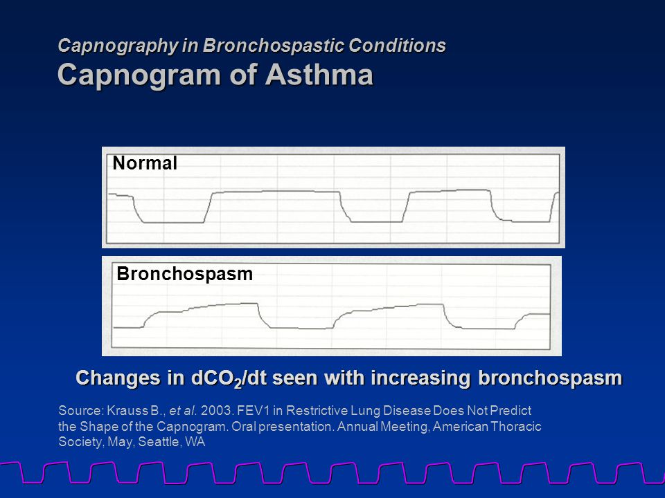 Capnography in Bronchospastic Conditions Capnogram of Asthma Source: Krauss B., et al.