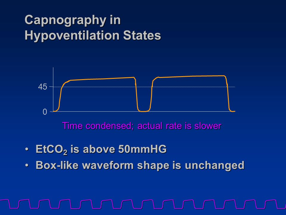 Capnography in Hypoventilation States EtCO 2 is above 50mmHGEtCO 2 is above 50mmHG Box-like waveform shape is unchangedBox-like waveform shape is unch