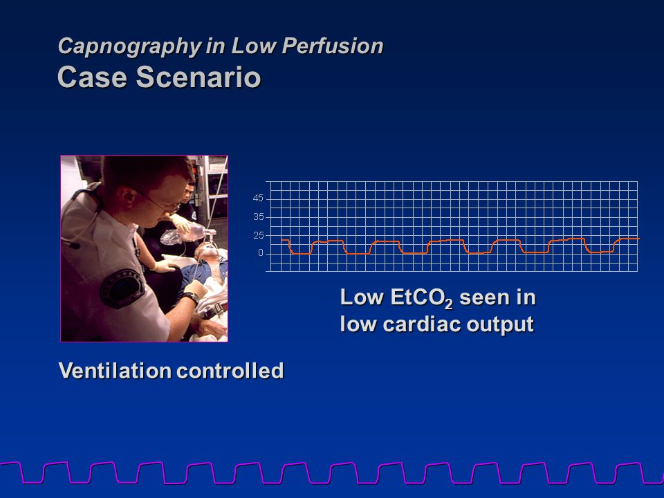 Capnography in Low Perfusion Case Scenario Low EtCO 2 seen in low cardiac output Ventilation controlled