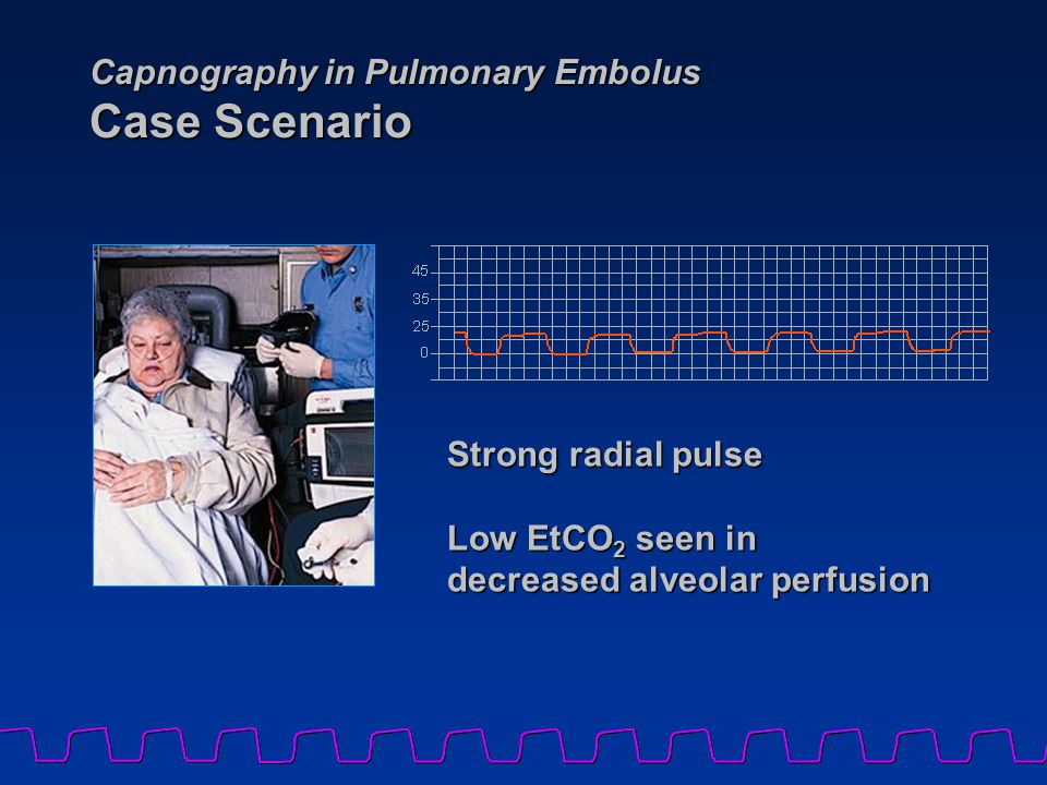 Capnography in Pulmonary Embolus Case Scenario Strong radial pulse Low EtCO 2 seen in decreased alveolar perfusion