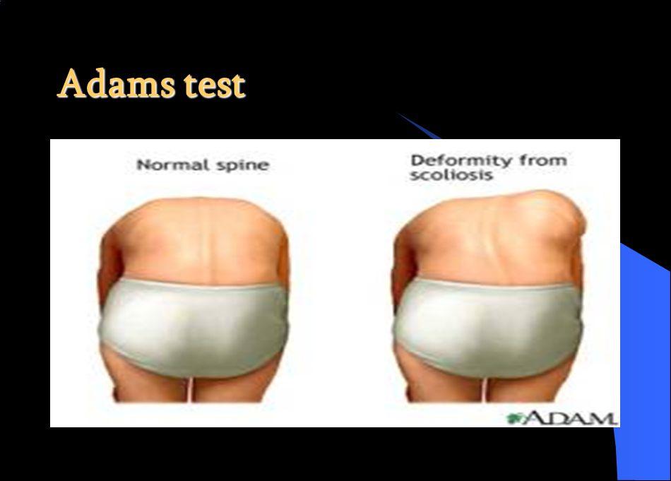 Adams test