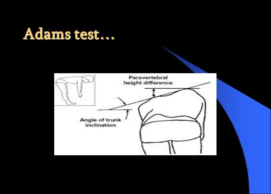Adams test…