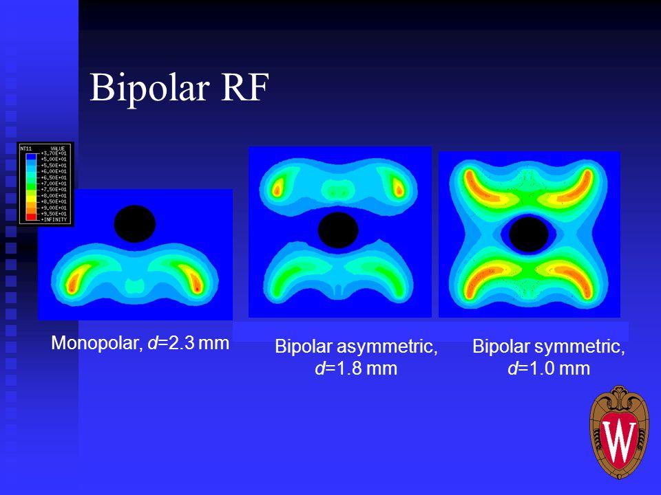 Monopolar, d=2.3 mm Bipolar asymmetric, d=1.8 mm Bipolar symmetric, d=1.0 mm