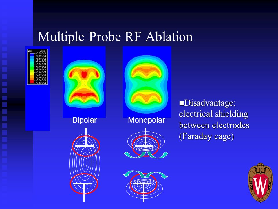 Multiple Probe RF Ablation MonopolarBipolar Disadvantage: electrical shielding between electrodes (Faraday cage) Disadvantage: electrical shielding between electrodes (Faraday cage)