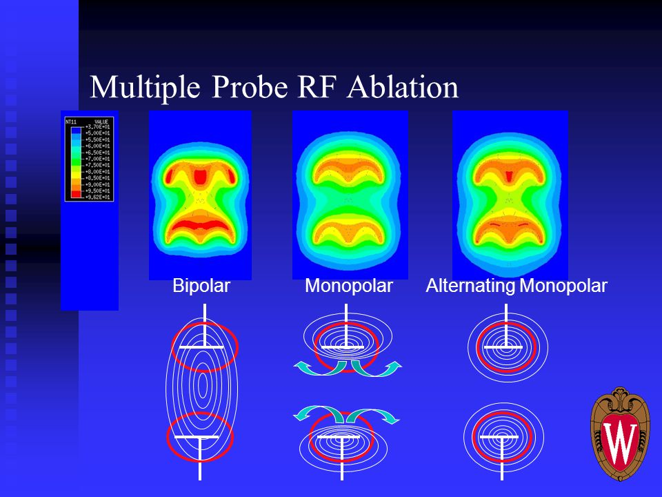Multiple Probe RF Ablation MonopolarBipolarAlternating Monopolar