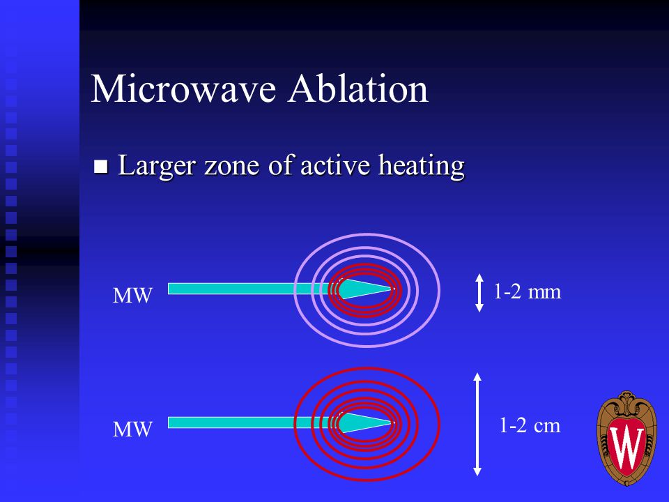 Microwave Ablation Larger zone of active heating Larger zone of active heating 1-2 cm MW 1-2 mm MW