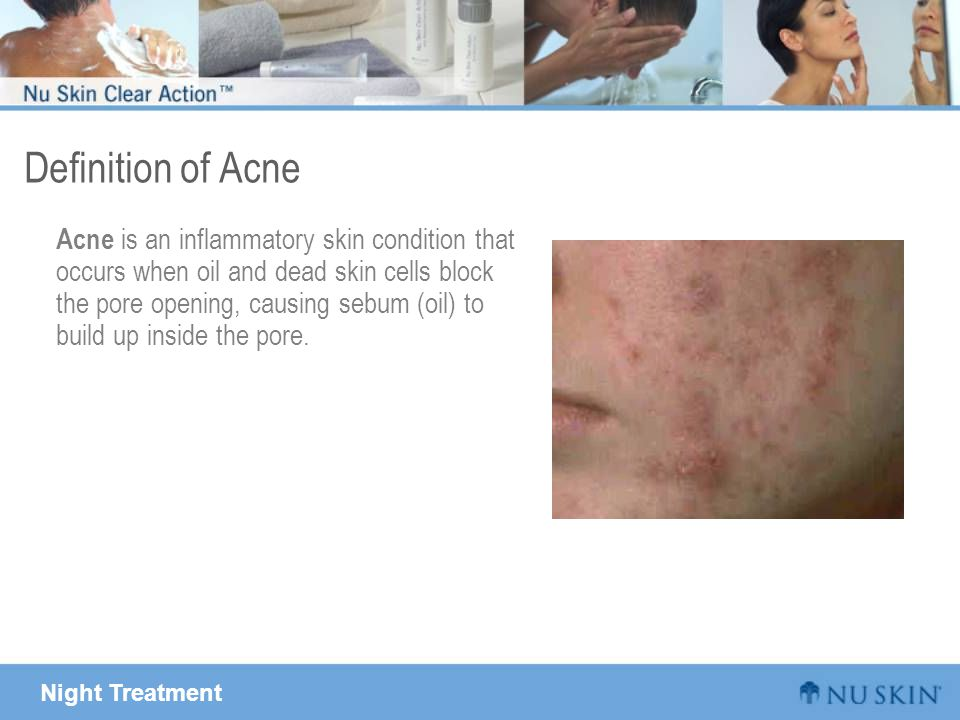 Night Treatment Definition of Acne Acne is an inflammatory skin condition that occurs when oil and dead skin cells block the pore opening, causing seb