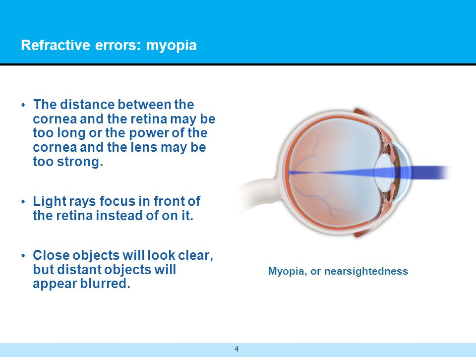 4 Refractive errors: myopia The distance between the cornea and the retina may be too long or the power of the cornea and the lens may be too strong.