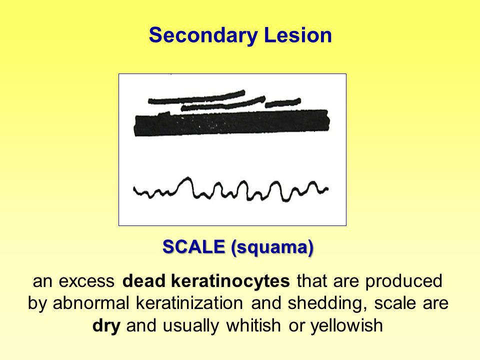 Secondary Lesion SCALE (squama) an excess dead keratinocytes that are produced by abnormal keratinization and shedding, scale are dry and usually whit