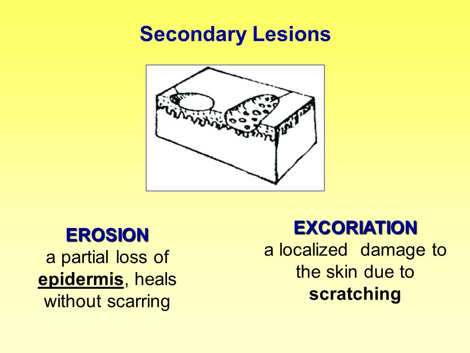 Secondary Lesions EROSION EROSION a partial loss of epidermis, heals without scarring EXCORIATION EXCORIATION a localized damage to the skin due to sc