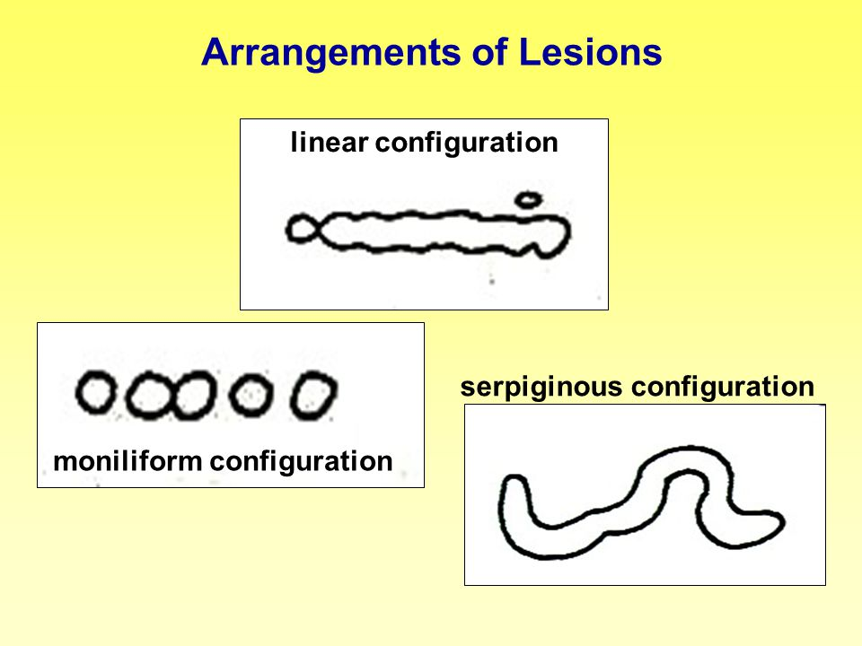 Arrangements of Lesions linear configuration moniliform configuration serpiginous configuration