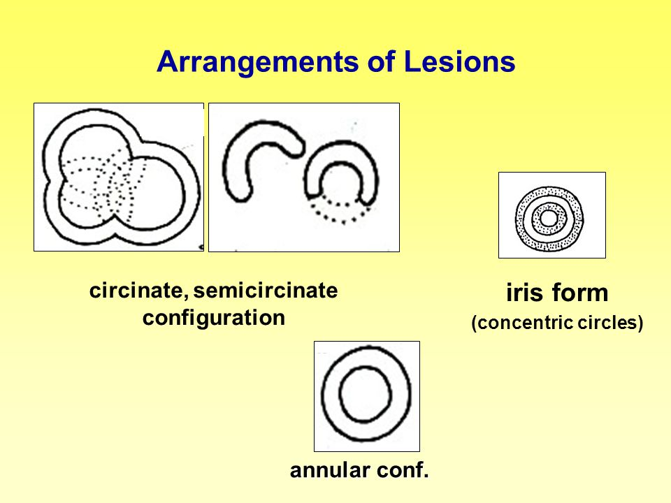 circinate, semicircinate configuration iris form (concentric circles) annular conf. Arrangements of Lesions