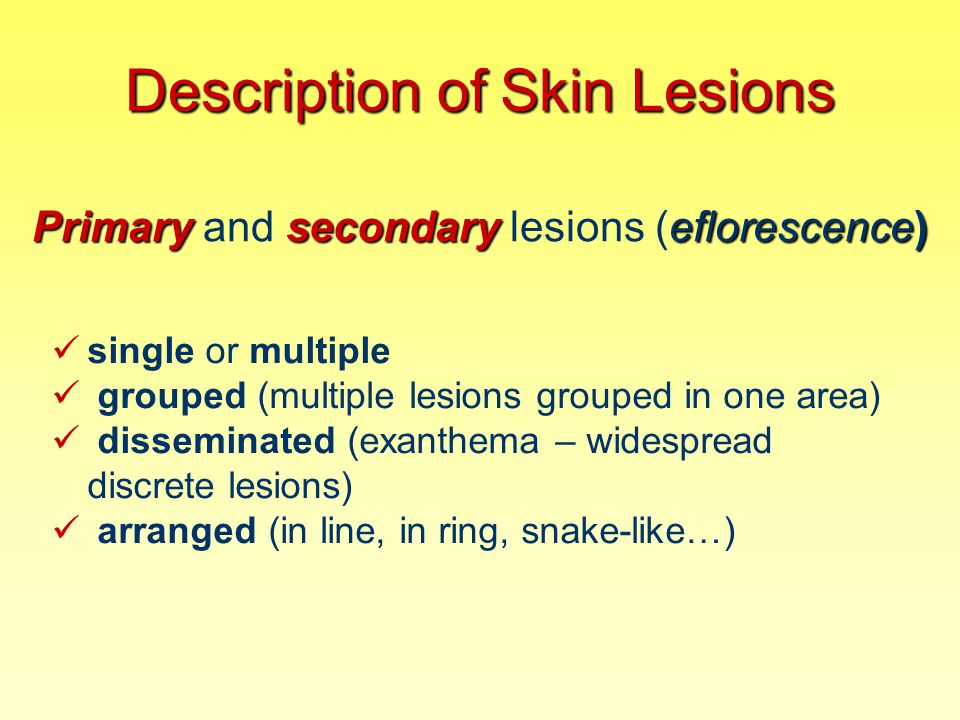 Secondary Lesion FISSURE a linear split in epidermis or dermis, with sharply defined vertical walls, over a joint or along a skin crease (skin isn´t flexible due to mycosis, eczema, psoriasis…)