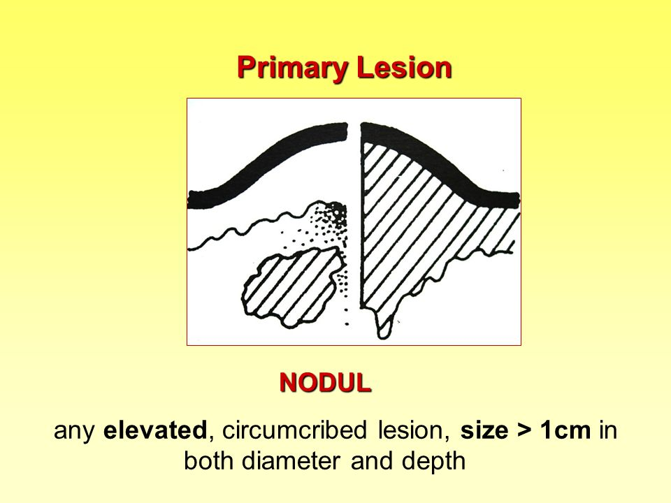 : Lesions can be: single or multiple grouped (multiple lesions grouped in one area… …are confluent in one area) disseminated (exanthema = widespread discrete lesions) arranged (lesions form some configuration – e.g.