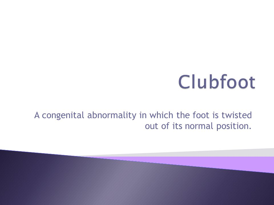 A congenital abnormality in which the foot is twisted out of its normal position.