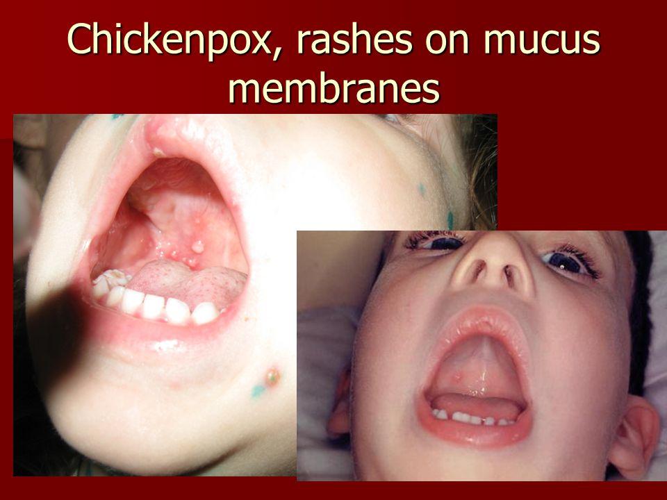 Chickenpox, rashes on mucus membranes