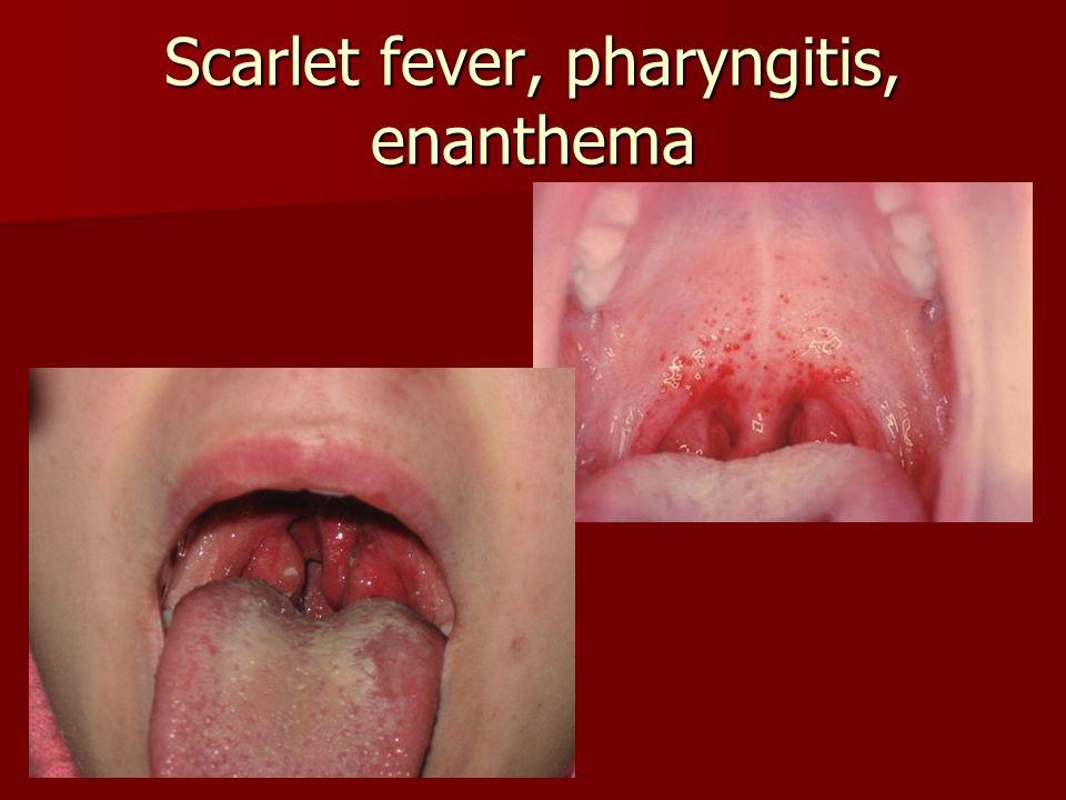 Scarlet fever, pharyngitis, enanthema
