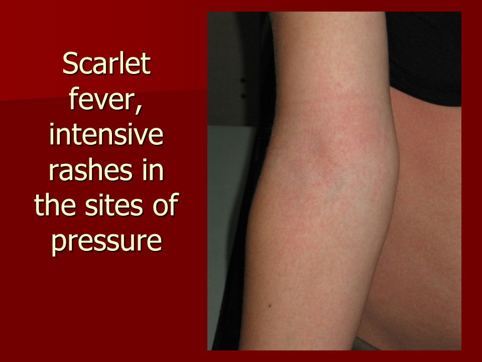 Scarlet fever, intensive rashes in the sites of pressure