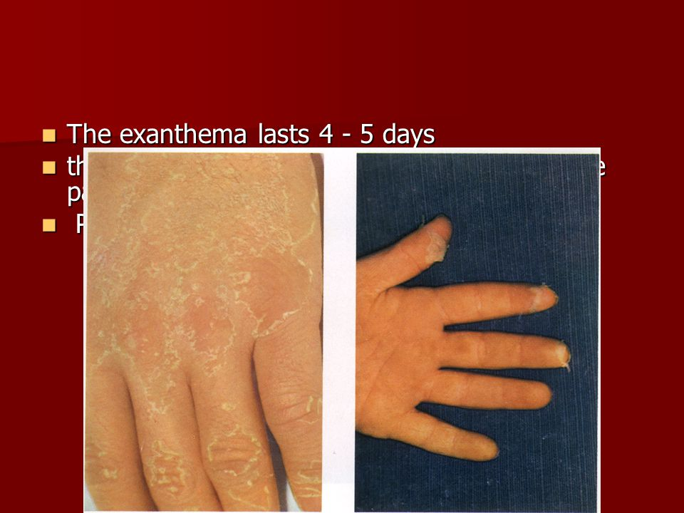 The exanthema lasts 4 - 5 days The exanthema lasts 4 - 5 days then desquamate, first on the face last on the palms and soles.