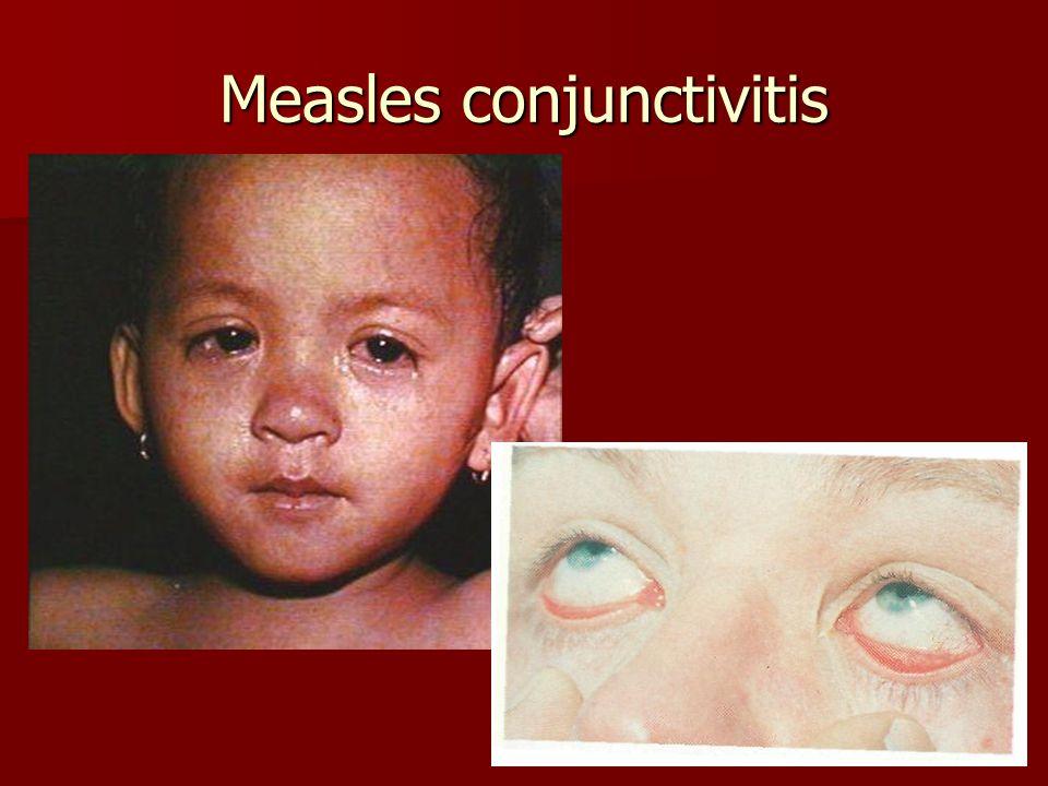 Measles conjunctivitis
