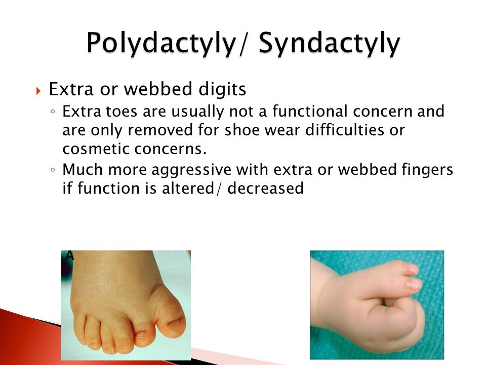  Extra or webbed digits ◦ Extra toes are usually not a functional concern and are only removed for shoe wear difficulties or cosmetic concerns.
