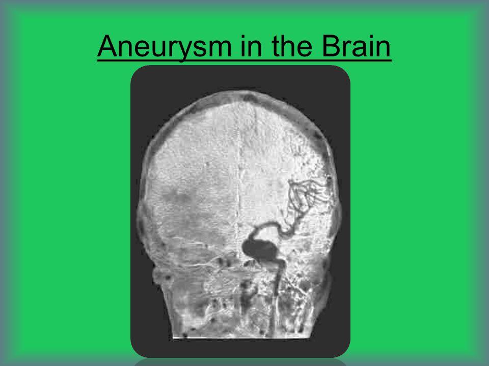 Aneurysm in the Brain