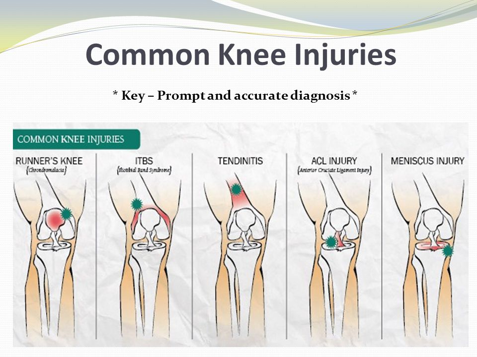 Common Knee Injuries * Key – Prompt and accurate diagnosis *