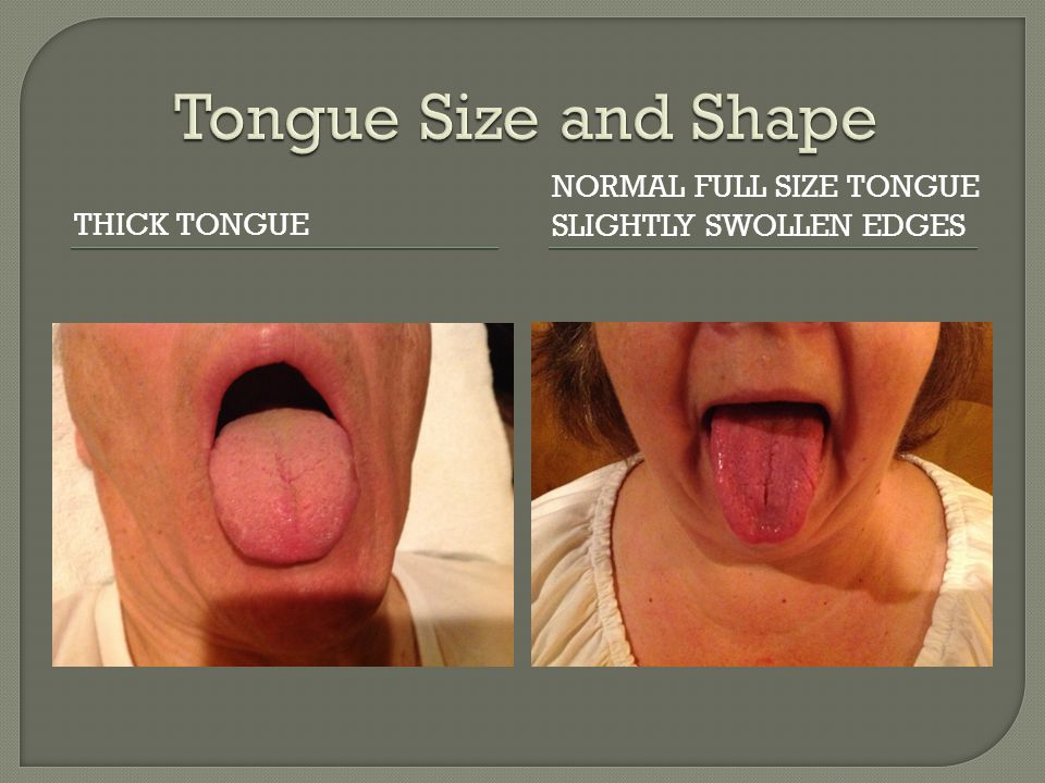 THICK TONGUE NORMAL FULL SIZE TONGUE SLIGHTLY SWOLLEN EDGES