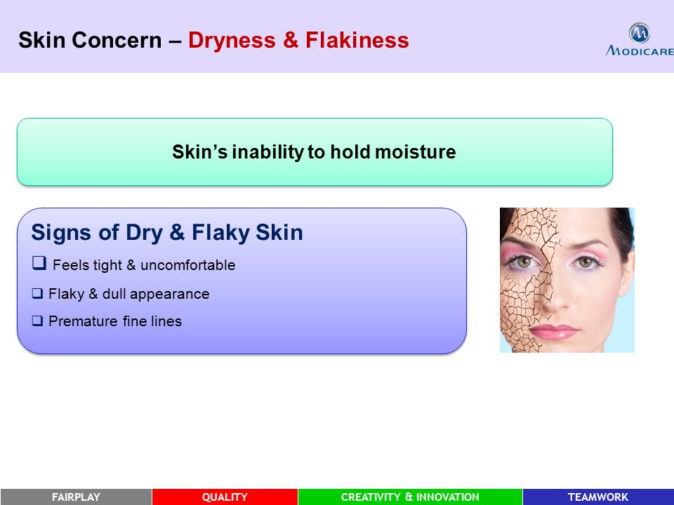 FAIRPLAYQUALITYCREATIVITY & INNOVATIONTEAMWORK Skin Concern – Dryness & Flakiness Signs of Dry & Flaky Skin  Feels tight & uncomfortable  Flaky & dull appearance  Premature fine lines Signs of Dry & Flaky Skin  Feels tight & uncomfortable  Flaky & dull appearance  Premature fine lines Skin's inability to hold moisture