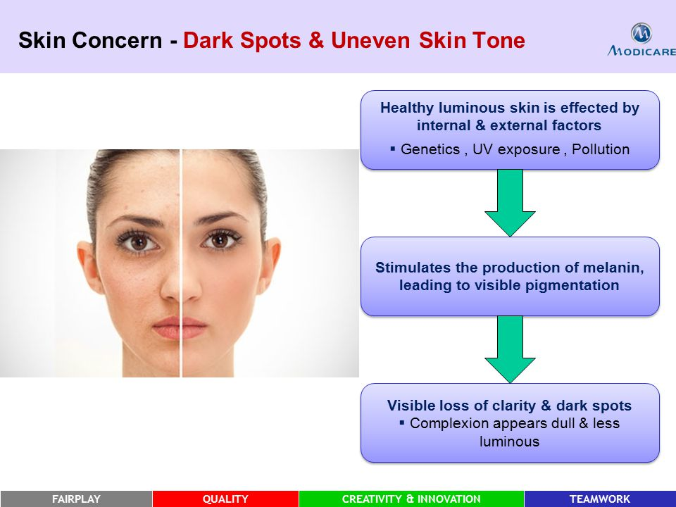 FAIRPLAYQUALITYCREATIVITY & INNOVATIONTEAMWORK Skin Concern - Dark Spots & Uneven Skin Tone Healthy luminous skin is effected by internal & external factors  Genetics, UV exposure, Pollution Healthy luminous skin is effected by internal & external factors  Genetics, UV exposure, Pollution Stimulates the production of melanin, leading to visible pigmentation Visible loss of clarity & dark spots  Complexion appears dull & less luminous Visible loss of clarity & dark spots  Complexion appears dull & less luminous