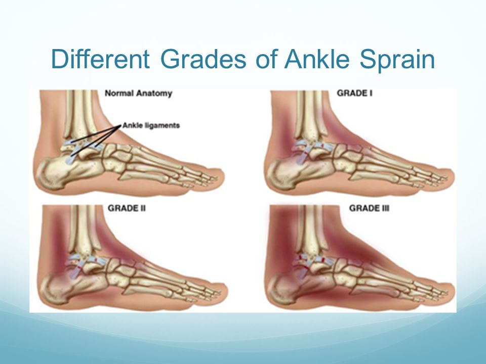 Different Grades of Ankle Sprain