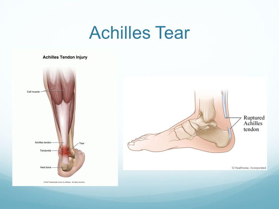 Achilles Tear