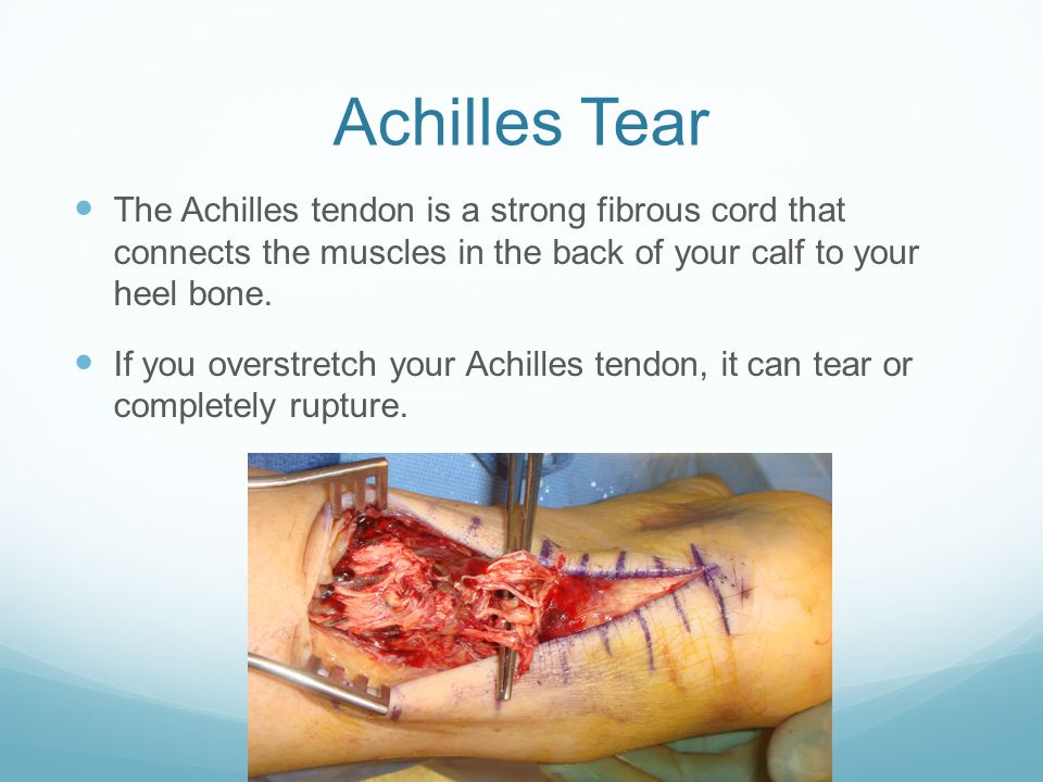 The Achilles tendon is a strong fibrous cord that connects the muscles in the back of your calf to your heel bone.