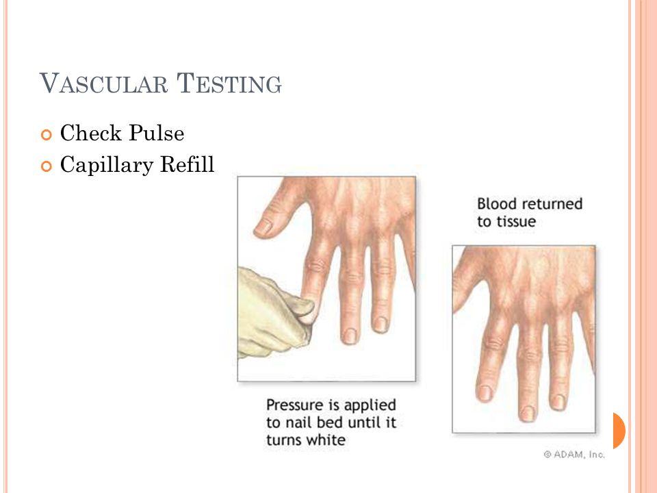 V ASCULAR T ESTING Check Pulse Capillary Refill