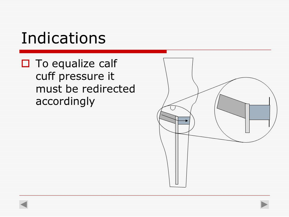 Indications  To equalize calf cuff pressure it must be redirected accordingly