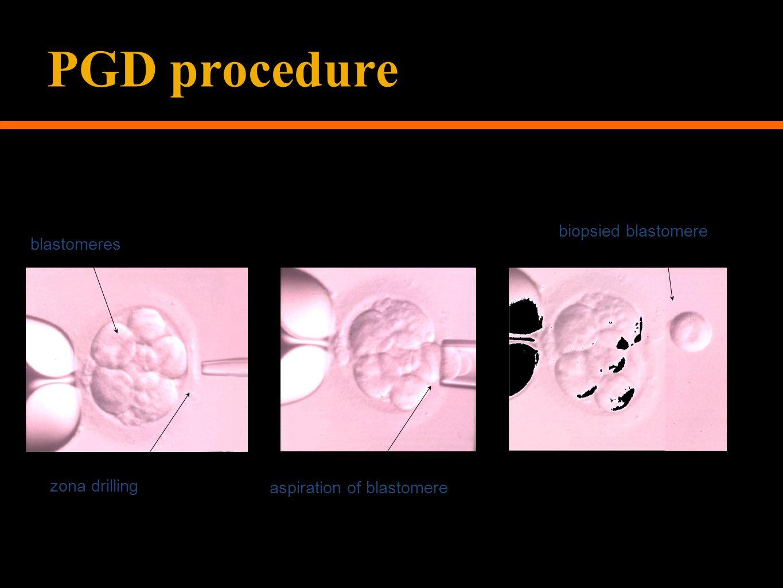 Courtesy of Paul Mitchell, ACS Suite, GRI blastomeres zona drilling aspiration of blastomere biopsied blastomere PGD procedure