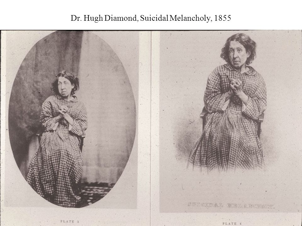 Dr. Hugh Diamond, Suicidal Melancholy, 1855